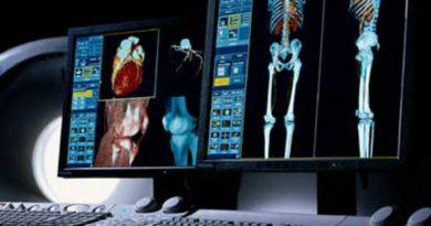 Anvisa promove debate sobre serviços de Radiologia