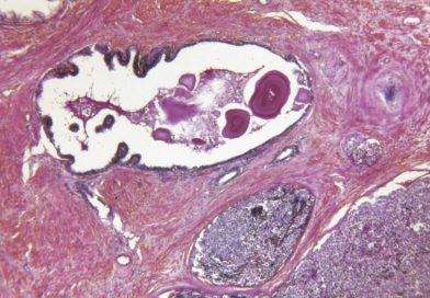 Nova radioterapia é alternativa para pacientes com câncer de próstata avançado