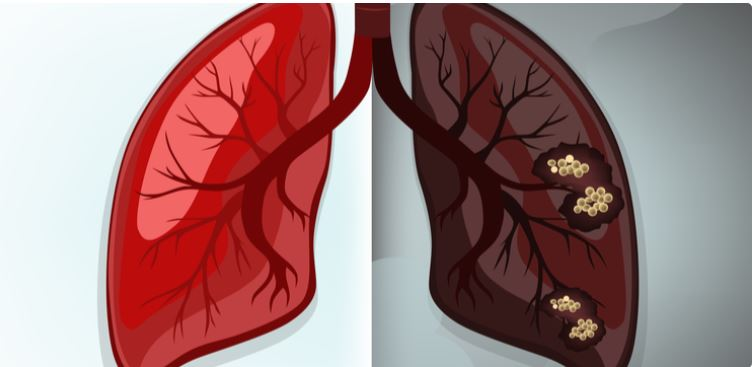 Anvisa autoriza novo tratamento para câncer de pulmão