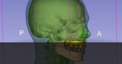 Radiologia: Pesquisador brasileiro desenvolve material para simulador de ossos e tecidos mais econômico